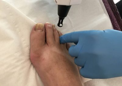 Laser Treatment Nail Fungal