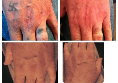 tattoo removal after before