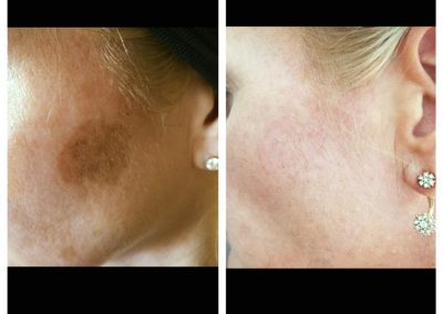 PIGMENTATION ON THE CHEEK BEFORE _ AFTER (2)