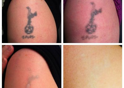 Tatto Removal After Before